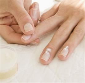 指甲上有白点是怎么回事 怎么办,手指甲上有白点,指甲上有白点怎么回事