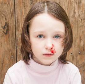 鼻子出血发烧怎么回事,发烧鼻子出血,孩子发烧后鼻子出血