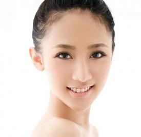 割双眼皮要多久恢复,割双眼皮恢复期要多久,割双眼皮后恢复图