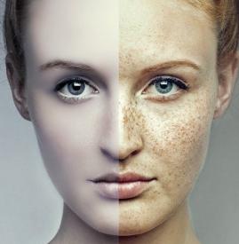果酸换肤注意事项,果酸换肤后应注意什么